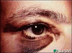 black-eye